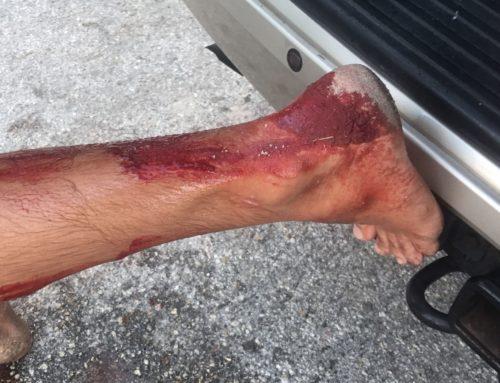 Shark Attacks Surfer During Hurricane Maria Swell